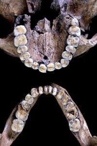 縄文人の歯並び
